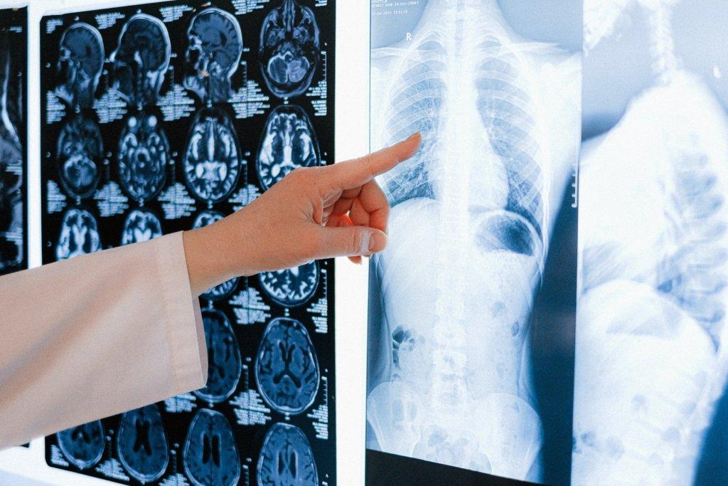 Röntgengeräte – wichtig für die Medizin. – ©Unsplash